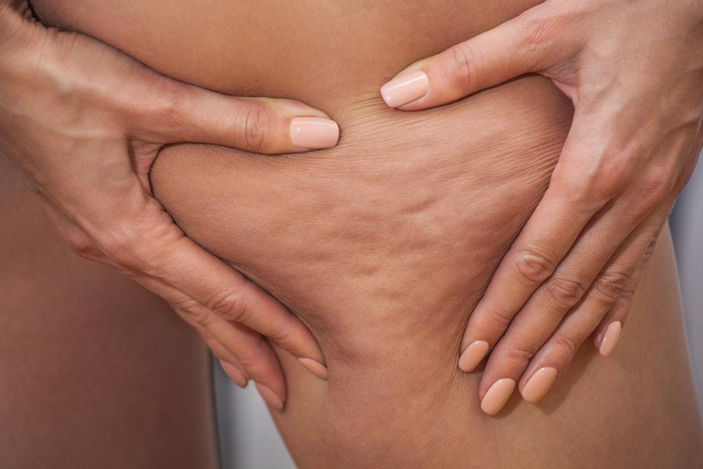 Qu'est ce que la cellulite ?